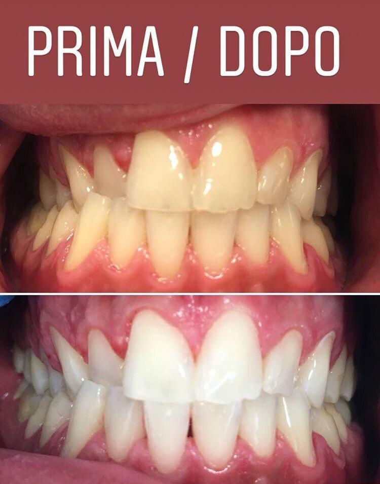 sbiancamento dentale1